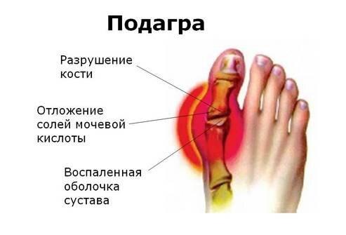 Подагра большого пальца ноги лечение