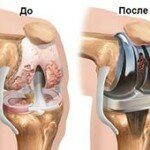 Эндопротезирования коленного сустава